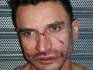Both victims suffered facial injuries, with one requiring eye surgery
