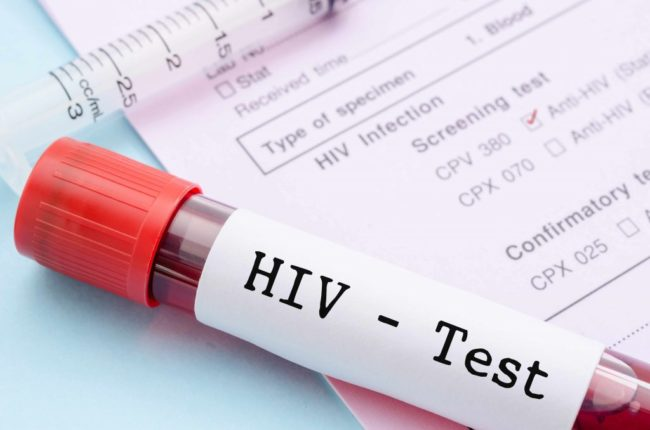 Online HIV programme featuring interactive games reduces STIs in gay young men by 40%