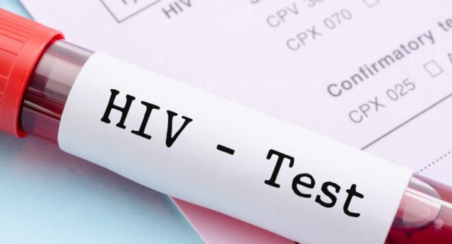 How to take a home hiv test is it as accurate as going to the pinknews daily lgbt newsletter stopboris Gallery