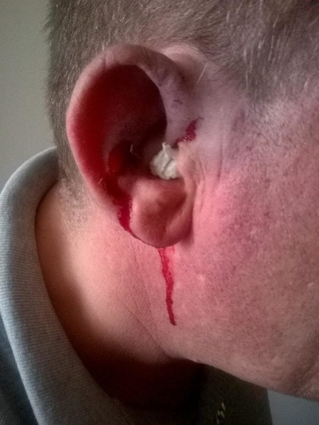Andrew was stabbed in the ear, and has a small bleed to the brain (Andrew Williams-Coleman)