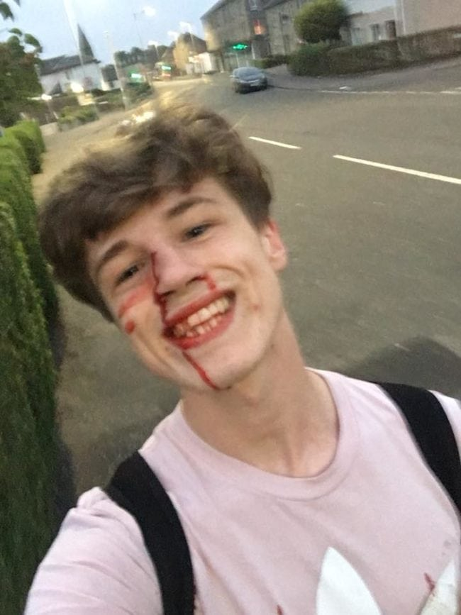 Blair Wilson bloody face smile after gay attack