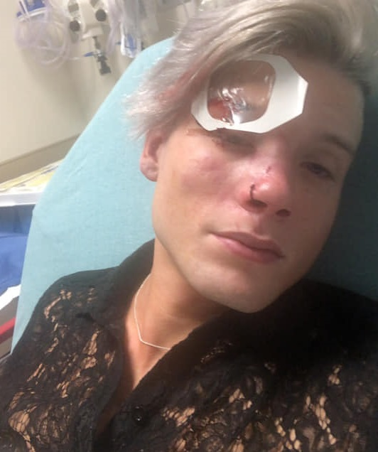 Texas gay couple attack: Tristan Perry was left with horrific injuries after being beaten and kicked in the head