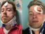 Texas gay couple Spencer Deehring and Tristan Perry were both hospitalised after the brutal anti-gay attack. (Tristan Perry)