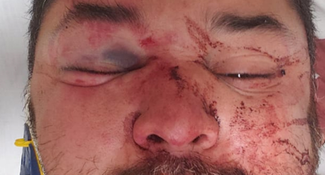 Phoenix resident Cesar Martin says he was attacked by a mob of 10 people. (Cesar Marin/Facebook)