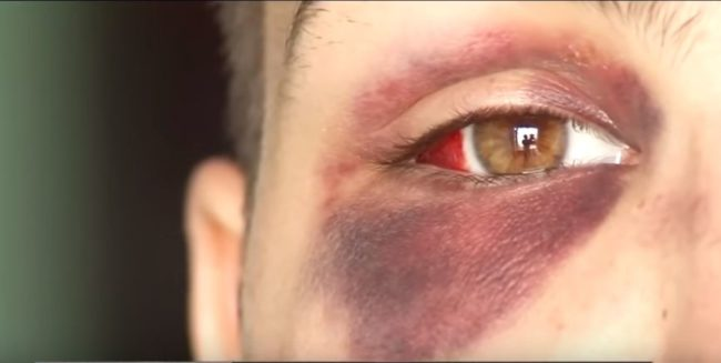 Transgender man assaulted in 'terrifying' hate crime in Colorado