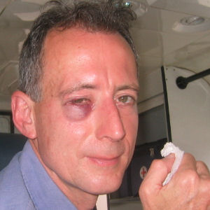 Peter Tatchell shortly after the attack