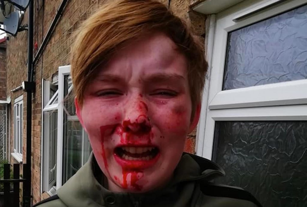 A woman with blood running down her nose