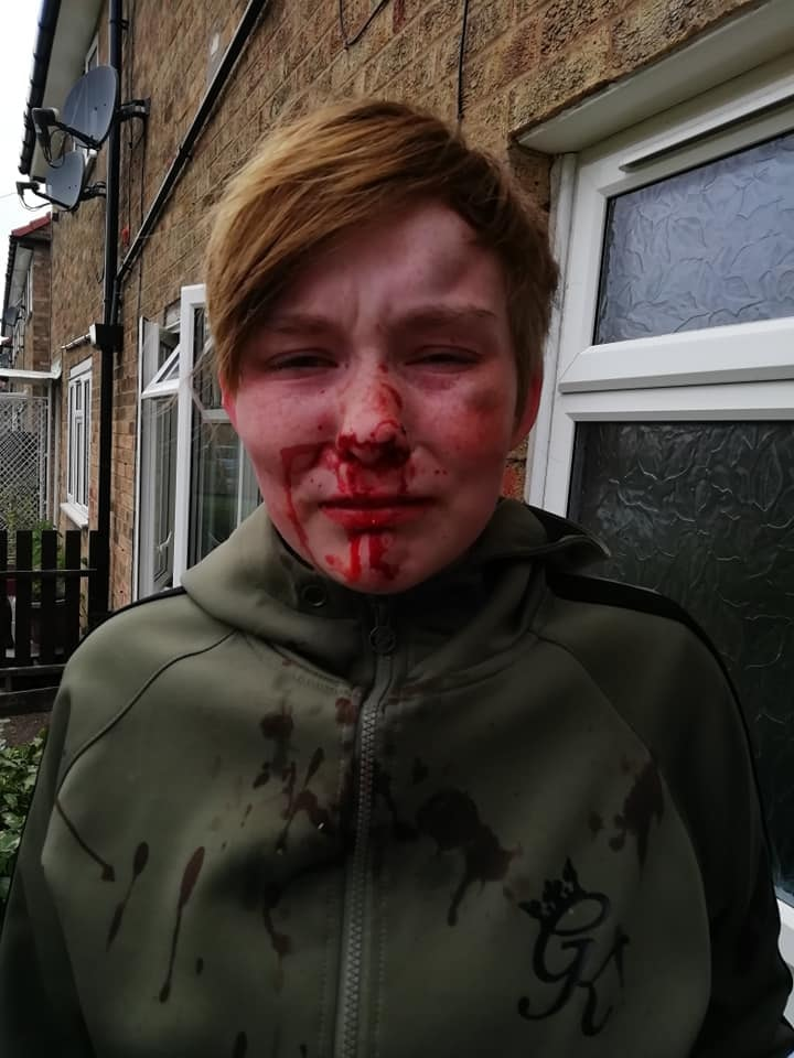 An 18-year-old girl with blood down her face